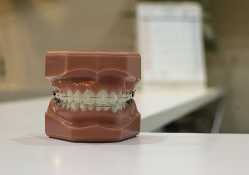 Disadvantages of Corporate Dental Offices
